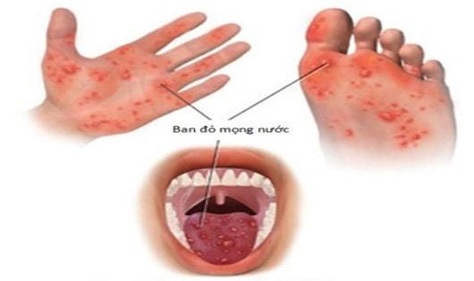 Bệnh tay chân miệng có thực sự nguy hiểm???
